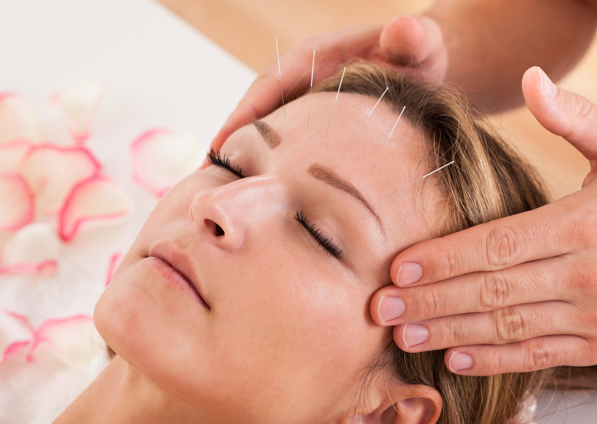 Akupunktur verschafft Schmerzlinderung